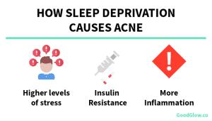 Sleep Deprivation causes acne
