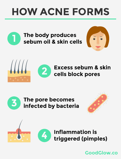The scientific process of how acne forms