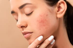 Acne Scar Removal Guide: 6 Methods (Natural and Treatments)